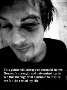 Norman EYe surg